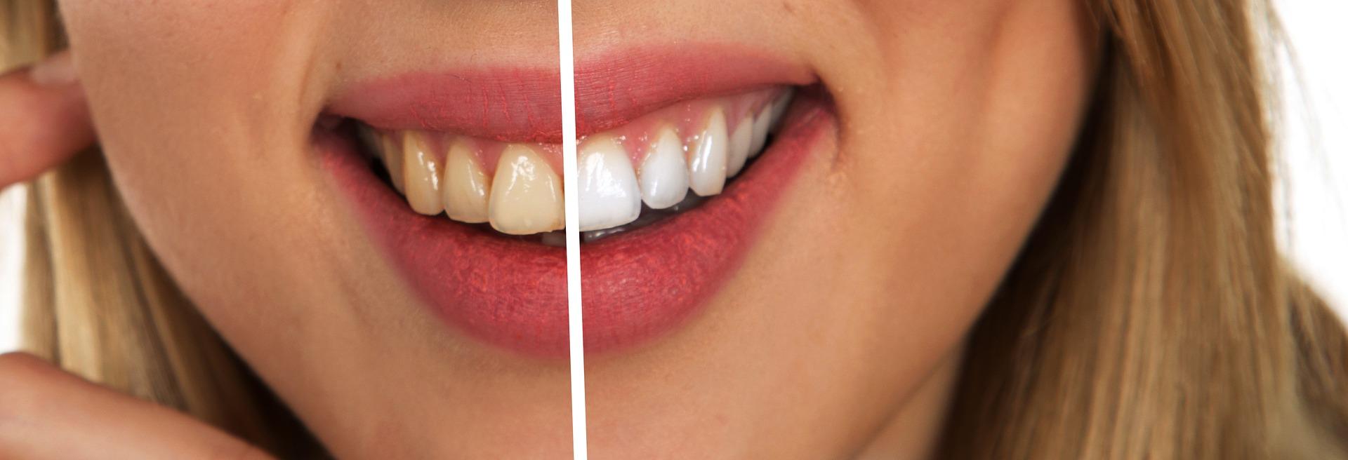 Как отбелить зубы вдомашних условиях